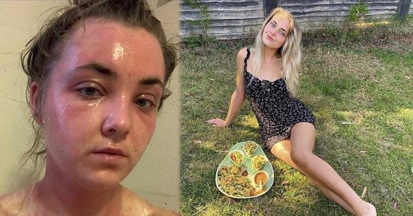"""Từng rất tự ti vì cơ thể có mùi như """"thịt thối"""", cô gái theo chế độ ăn thuần chay rồi lột xác thành người mẫu xinh đẹp ở tuổi 22"""