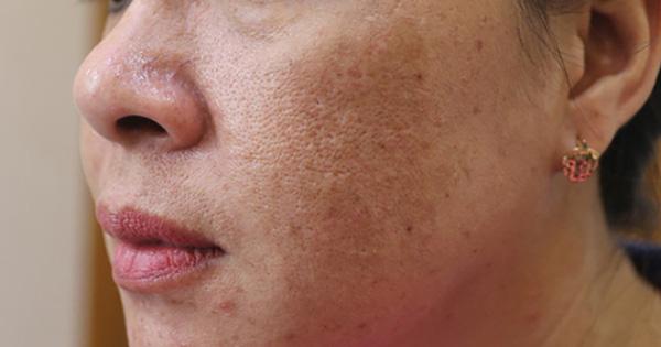 Sáng ngủ dậy thấy 3 điểm bất thường trên mặt là dấu hiệu cảnh báo gan xấu, xem thử bạn có triệu chứng nào hay không