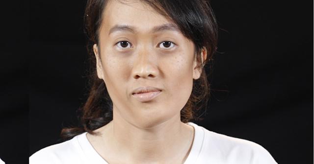 Hi hữu: Cô gái gây choáng sau ca phẫu thuật thẩm mỹ cắt ghép xương chỉnh sửa gương mặt